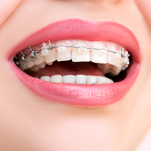 Dr S Mahalaxmi - Orthodontic Treatment